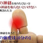 歯の神経を取る治療が終わったのに痛い原因